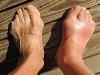 발목에 생긴 '뼛 조각' 방치하면 발목 염좌 자주 발생