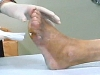 발가락 괴사 원인이 당뇨족 아니라 말초동맥질환?