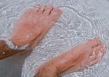 고온다습한 여름철, 당뇨 환자 맨발로 다니면 위험